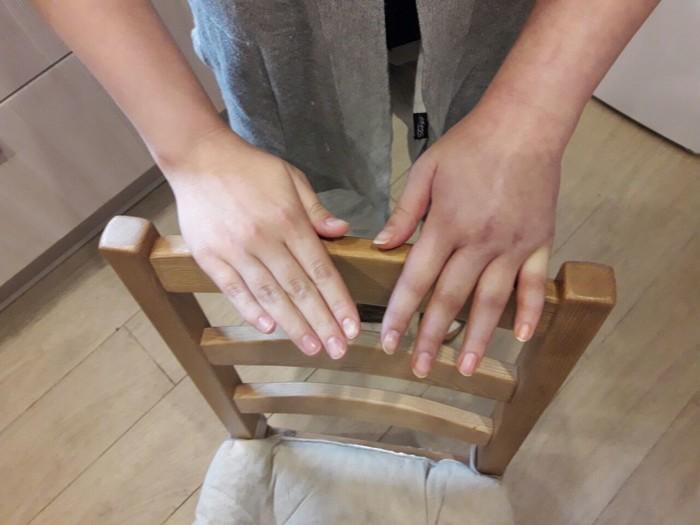 остеосинтез руки отек