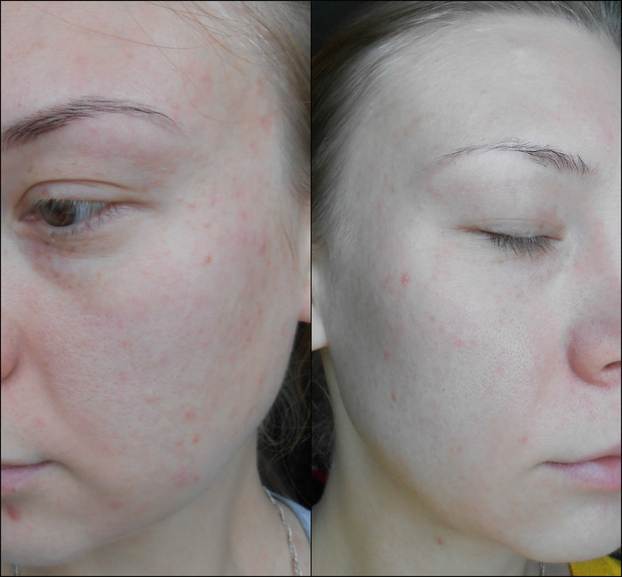 Tretonoin cream USP Tretin-0.05%, кожа до
